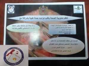 """حملة طبية لإزالة """"اجْلالة"""" بالمستشفى الإقليمي لتيزنيت"""