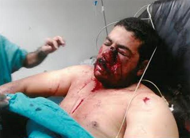 بلاغ للحكومة المغربية بخصوص إطلاق النار من الجيش الجزائري على مدنيين مغاربة بالحدود