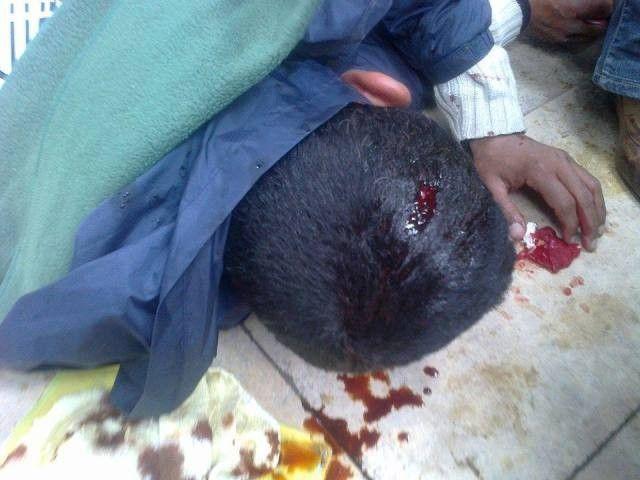 التشرميل بتيزنيت … إصابة شاب بجروح متفاوتة إثر اعتداء بالسلاح الأبيض