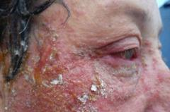 خطير : صبغة شعر تهدد ثلاثينية بالعمى
