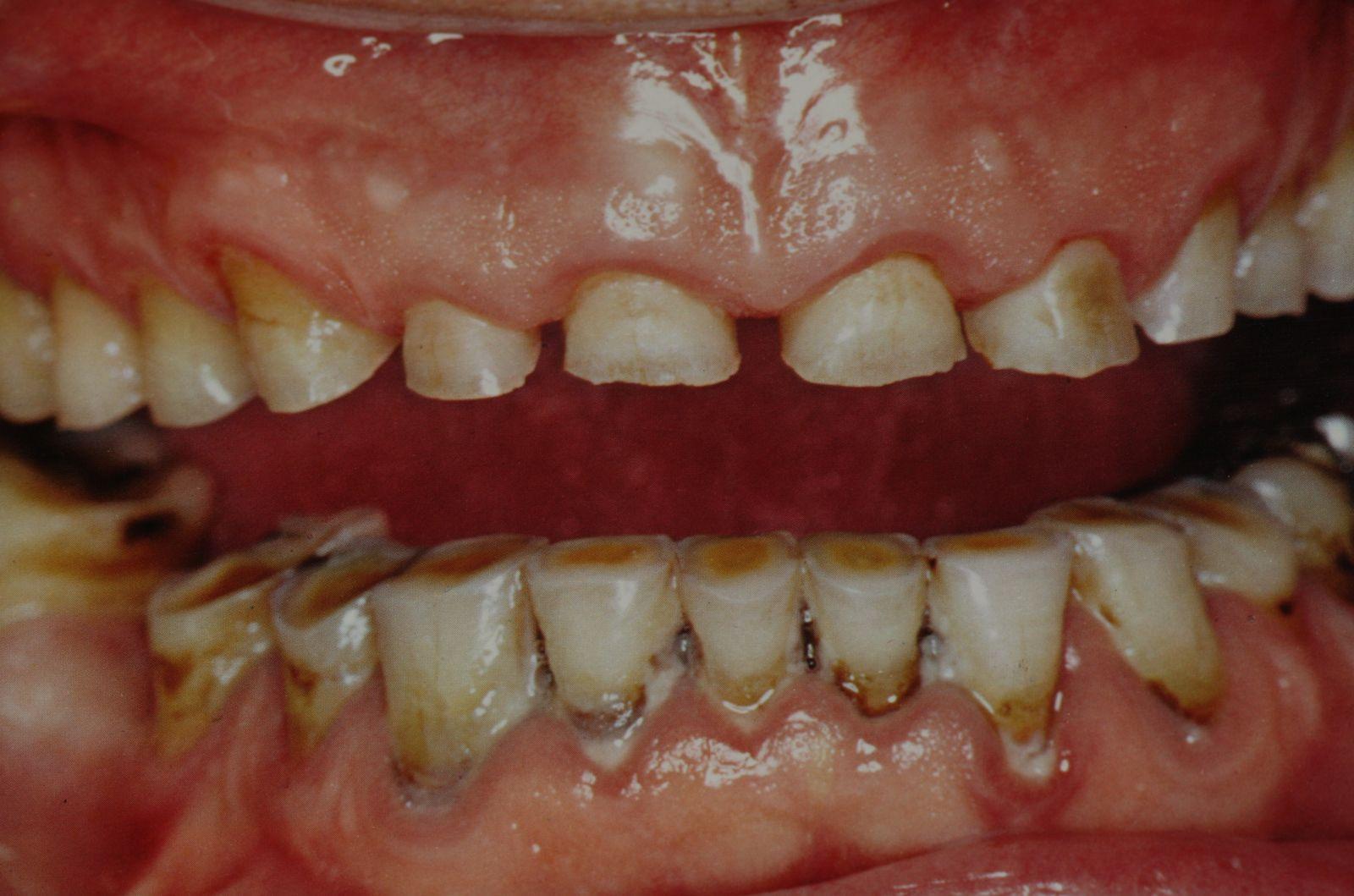 بنعبد الله: النزاع بين صانعي ومركبي الأسنان وهيأة الأطباء سيحل بشكل قانوني