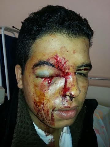 من ينصف التلميذ الذي هشم إبن شرطي وجهه بمدينة أولاد تايمة؟